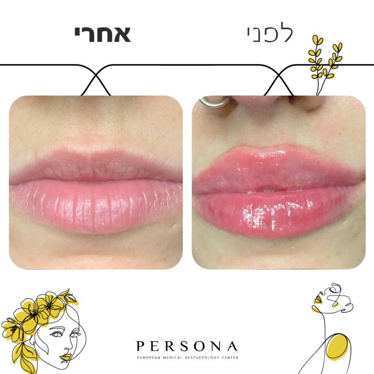 חדש לפני אחרי שפתיים1
