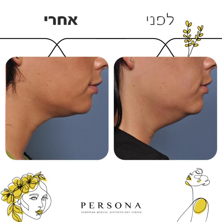 תבנית לפני אחרי FULL FACE-Recovered